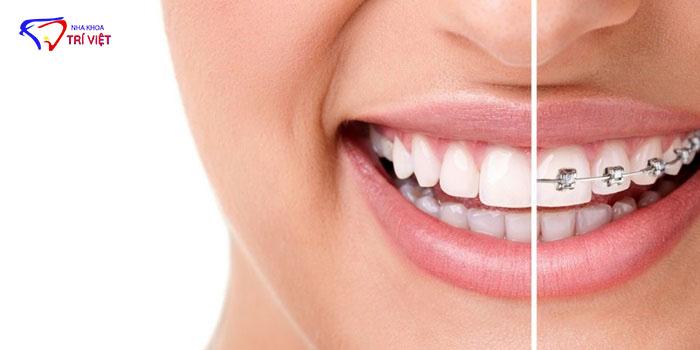 Địa chỉ nha khoa niềng răng uy tín chất lượng-02