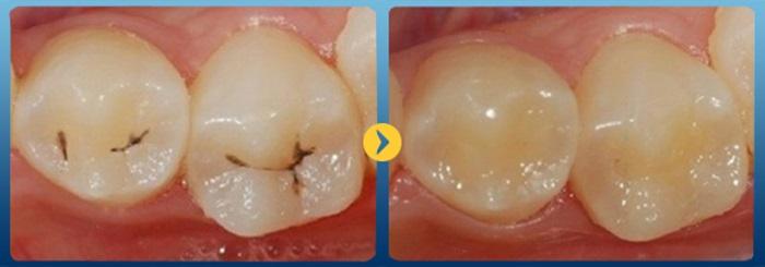 Nha khoa bọc men răng thẩm mỹ uy tín chất lượng-01