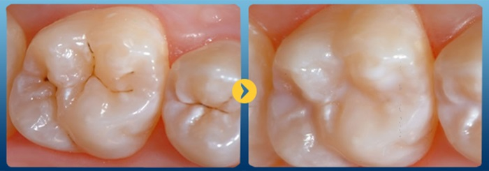 Nha khoa bọc men răng thẩm mỹ uy tín chất lượng-02