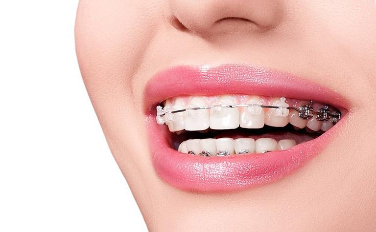 Niềng răng đẹp tại TPHCM giá bao nhiêu?-02