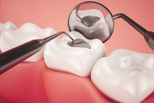 Phủ men răng giá rẻ uy tín chất lượng tại Gò Vấp