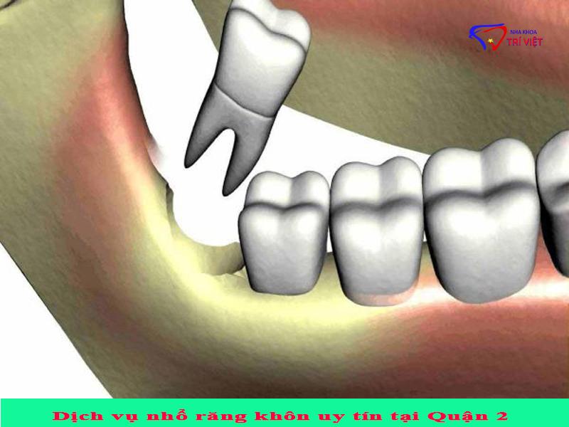 Dịch vụ nhổ răng khôn uy tín tại Quận 2