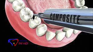 Trám răng thẩm mỹ tại Quận 2 uy tín