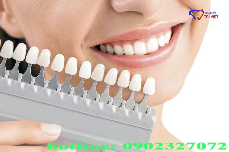 Trồng răng sứ thẩm mỹ - Nha khoa Trí Việt