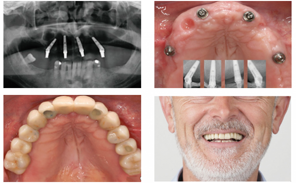 Image result for Quy trình trồng răng All-on-4