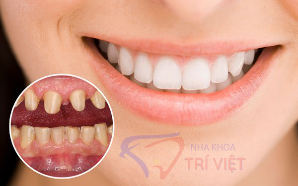 Dịch vụ bọc răng sứ giá rẻ tại tphcm uy tín