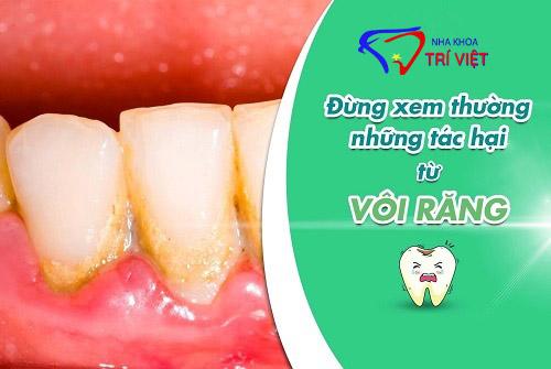 Cạo vôi răng tại tphcm Cạo vôi răng chuyên nghiệp