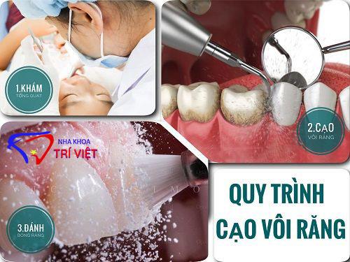 Cạo vôi răng tại tphcm tại nha khoa cạo vôi răng uy tín