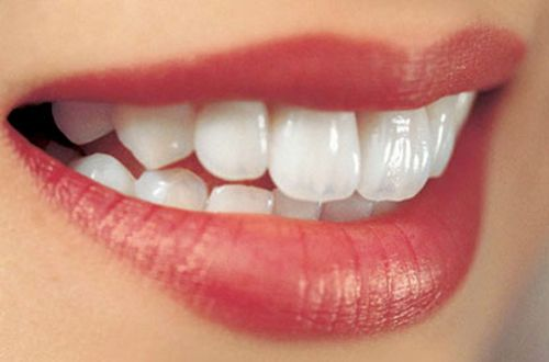 Nha khoa uy tín trồng răng sứ tại tphcm
